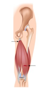 {Hamstring Injury on the Biceps Femorus)