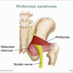 Piriformis-syndrome-This illustration is demonstrating the Sciatic Nerve placement running from the Sacrum bone, into the pelvic region and down behind the Piriformis
