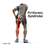 When Piriformis Syndrome is advanced, it produces bad posture which can lead to other problems.