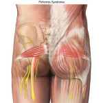 {Piriformis-syndrome in 3D Demonstrating the Sciatic nerve placement running stemming from the Sacrum bone out into the pelvic region and down behind the Piriformis)}