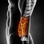 {Lumbar Vertebrae in orange}