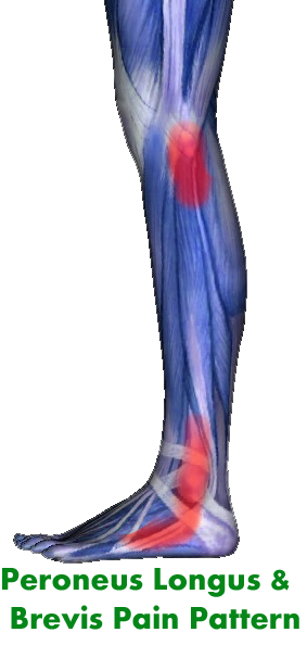 Lateral Shin- Peroneus Longus Brevis and Tertius Pain ...